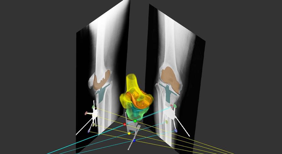 人工関節置換術プランニング ATHENA